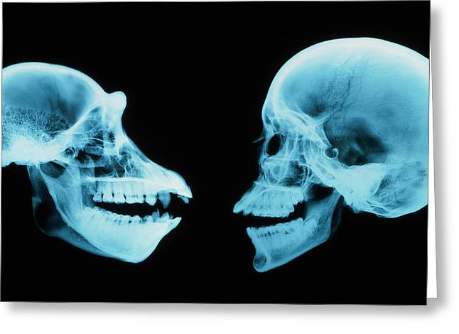 Historical Images Greeting Cards - Coloured X-ray Of Human And Chimpanzee Sk Greeting Card by D. Roberts