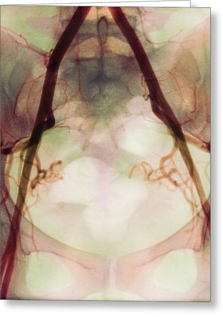 Pelvis Greeting Cards - Coloured X-ray Of Iliac Arteries To The Pelvis Greeting Card by