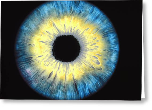 Enhanced Greeting Cards - Computer-enhanced Blue/yellow Iris Of The Eye Greeting Card by David Parker