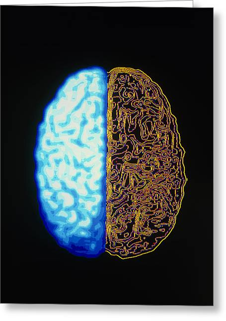 Cns Greeting Cards - Computer Graphic Of Superior Surface Of Brain Greeting Card by Pasieka