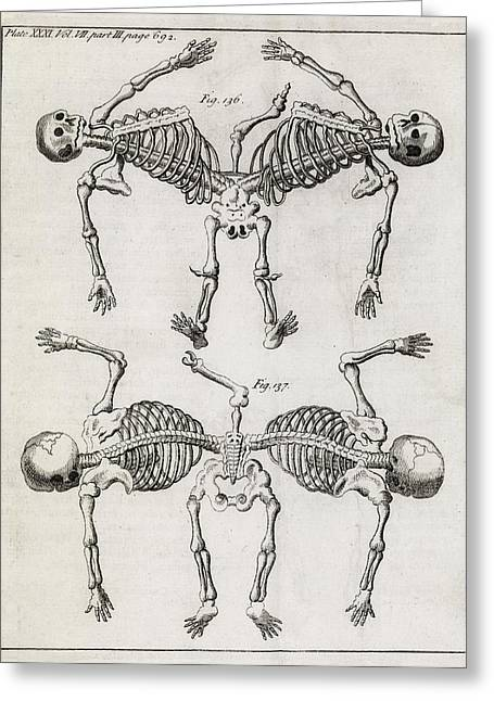 Philosophical Transactions Greeting Cards - Conjoined Twin Skeletons, 18th Century Greeting Card by Middle Temple Library