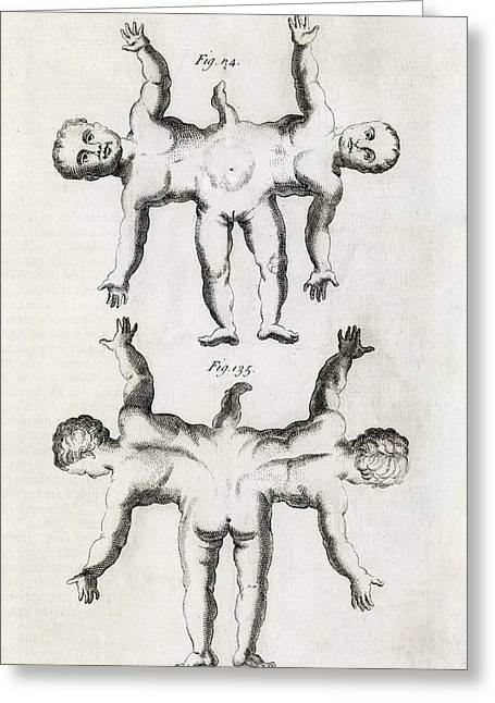 Philosophical Transactions Greeting Cards - Conjoined Twins, 18th Century Greeting Card by Middle Temple Library
