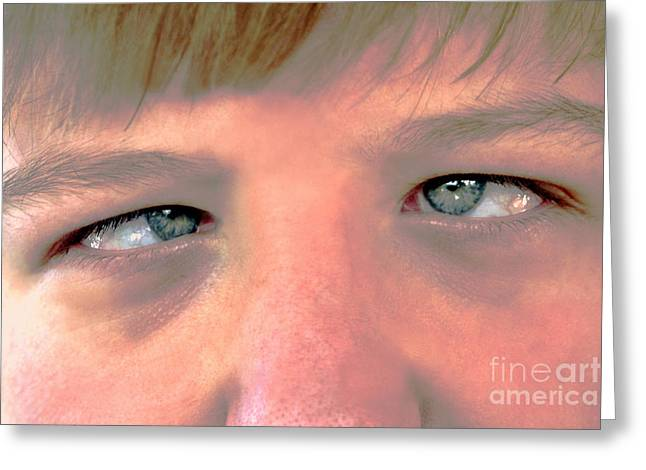 Kooky Greeting Cards - Cross-Eyed Teen Greeting Card by Susan Stevenson