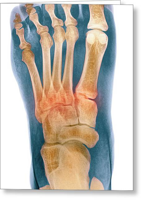 Crushed Greeting Cards - Crushed Broken Foot, X-ray Greeting Card by