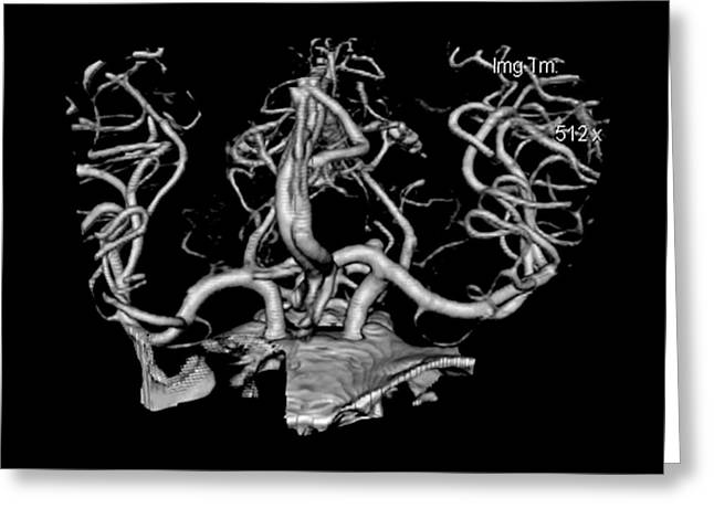 Ct Angiogram Greeting Cards - Ct Angiogram Of Aneurysm Greeting Card by Medical Body Scans