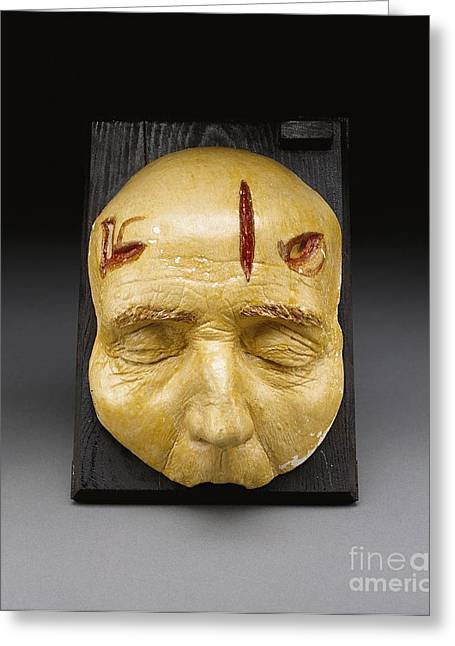 Incision Greeting Cards - Death Mask, Incision, Laceration Greeting Card by Science Source