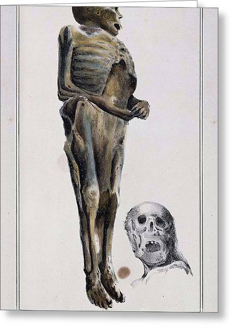 Toxicology Greeting Cards - Decomposition On Exhumed Bodies, 1831 Greeting Card by Science Source