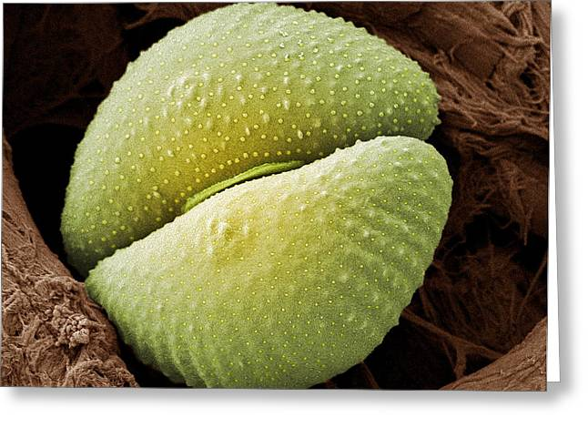 Desmid Greeting Cards - Desmid Alga, Sem Greeting Card by Steve Gschmeissner