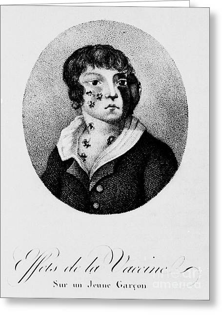 Bad Drawing Photographs Greeting Cards - Development Of Smallpox Greeting Card by Science Source
