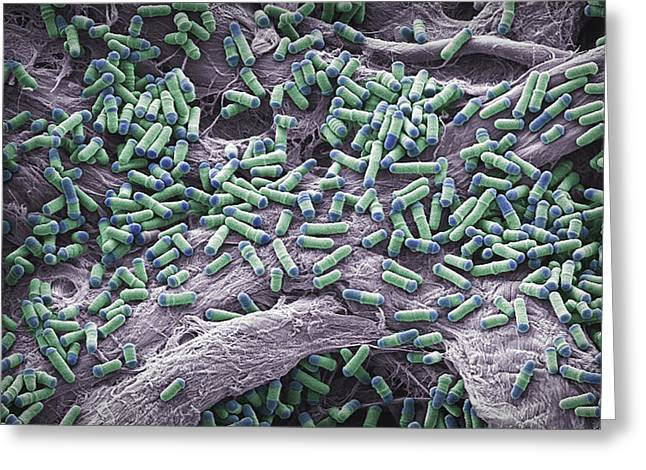 Dividing Yeast Cells, Sem Greeting Card by Steve Gschmeissner