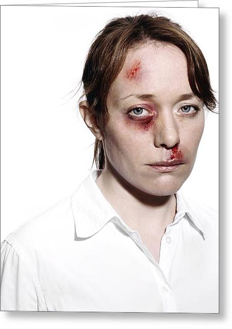 Wife Greeting Cards - Domestic Violence Greeting Card by Kevin Curtis