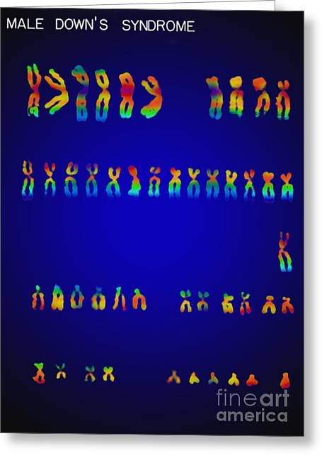 Best Sellers -  - Micrography Greeting Cards - Downs Syndrome Karyotype Greeting Card by Omikron