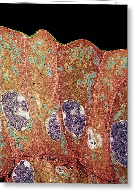 Duodenum Greeting Cards - Duodenum Secretory Cells Greeting Card by Steve Gschmeissner