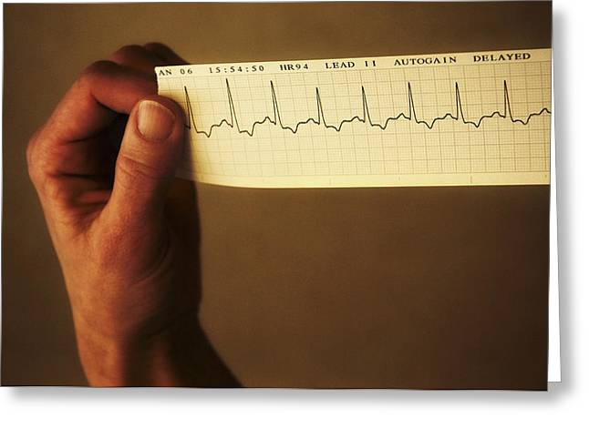 Contraction Greeting Cards - Ecg Of A Normal Heart Rate Greeting Card by Tim Vernon, Lth Nhs Trust