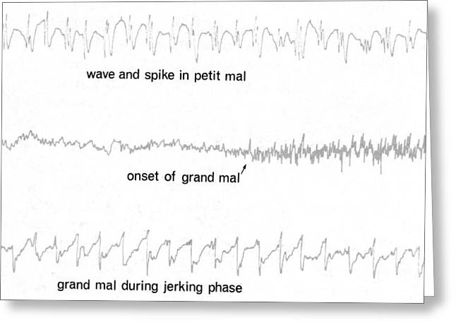Eeg Of Epileptic Seizures Greeting Card by Science Source