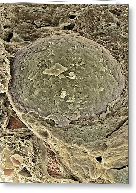 Freeze-fracture Greeting Cards - Egg Cell, Sem Greeting Card by Steve Gschmeissner