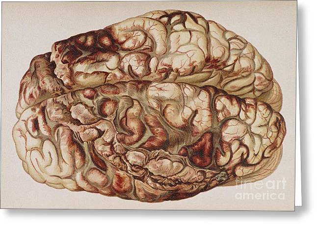 Law Enforcement Art Photographs Greeting Cards - Encircling Gunshot-wound In Brain, 1898 Greeting Card by Science Source