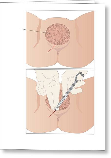 Incision Greeting Cards - Episiotomy, Artwork Greeting Card by Peter Gardiner