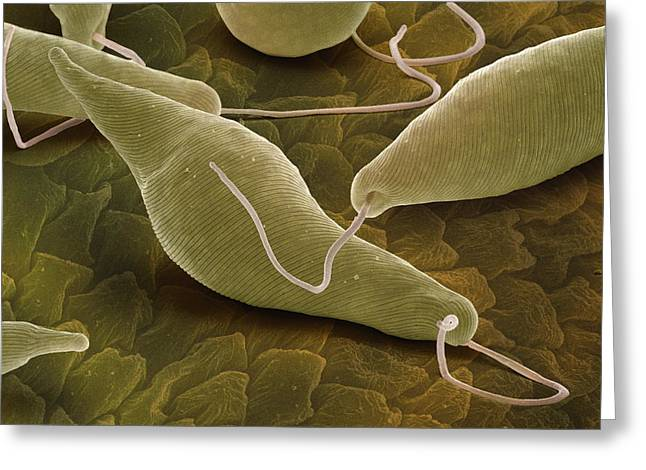 Protist Greeting Cards - Euglena Gracilis, Sem Greeting Card by Power And Syred