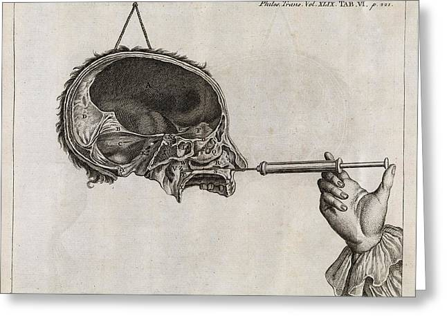 Treatment Greeting Cards - Eustachian Tube Syringing, 18th Century Greeting Card by Middle Temple Library