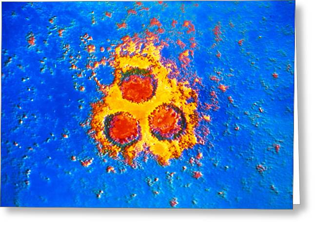 Pox Greeting Cards - False-col Tem Of Varicella-zoster Virus Particles Greeting Card by Cnri