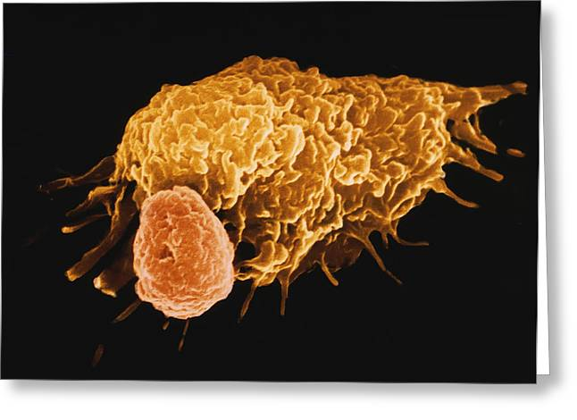 Macrophage Greeting Cards - False-colour Sem Of A Macrophage & Lymphocyte Greeting Card by Cnri