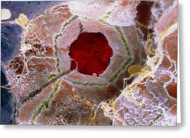 "Liver Greeting Cards - False-colour Sem Of Cell Structure Of Liver Lobule Greeting Card by Prof. P. Mottadept. Of Anatomyuniversity \la Sapienza"", Rome"""