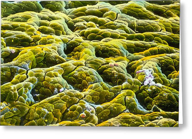 "Mucosa Greeting Cards - False-colour Sem Of Gastric Glands Of Stomach Greeting Card by Prof. P. Mottadept. Of Anatomyuniversity \la Sapienza"", Rome"""