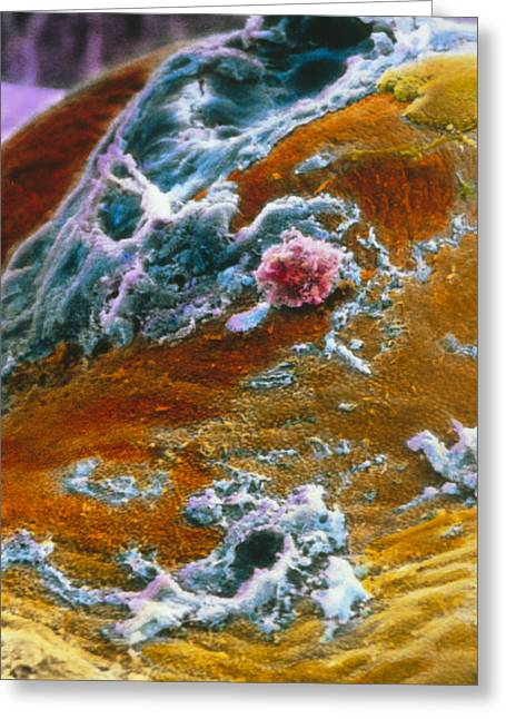 Ovaries Greeting Cards - False-colour Sem Of Human Egg After Ovulation Greeting Card by Professors P.m. Motta & J. Van Blerkom
