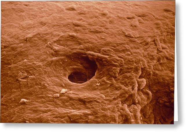 Sweat Pore Greeting Cards - False-colour Sem Of Human Skin From A Blister Greeting Card by Dr Jeremy Burgess.