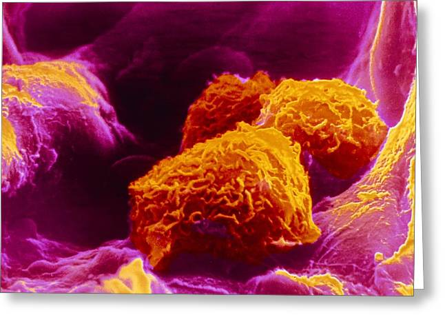 Macrophage Greeting Cards - False-colour Sem Of Three Macrophages In Lung Greeting Card by Cnri Photo Library