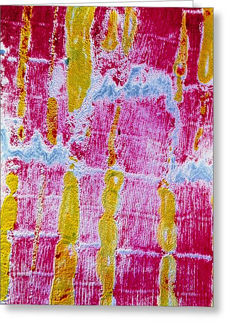 Striated Muscle Greeting Cards - False-colour Tem Of Striated Cardiac Muscle Greeting Card by Cnri