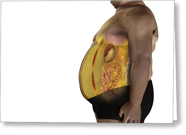 Obese Greeting Cards - Fat On Inner Organs, Artwork Greeting Card by Claus Lunau