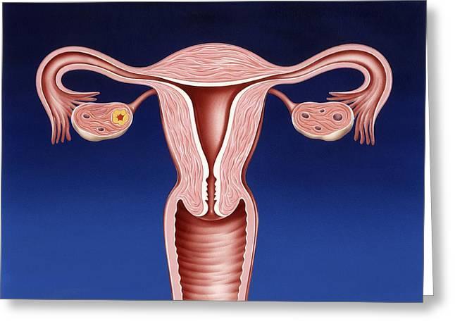 Uterus Greeting Cards - Female Reproductive System, Artwork Greeting Card by John Bavosi