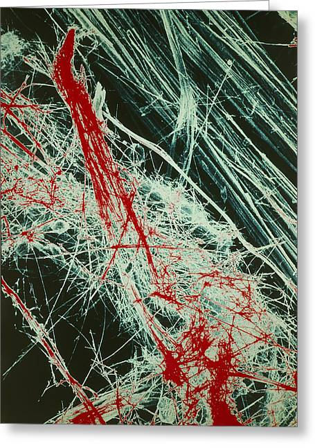 Scanning Electron Micrograph Greeting Cards - Fibres Of Blue Asbestos Greeting Card by Dr Jeremy Burgess.