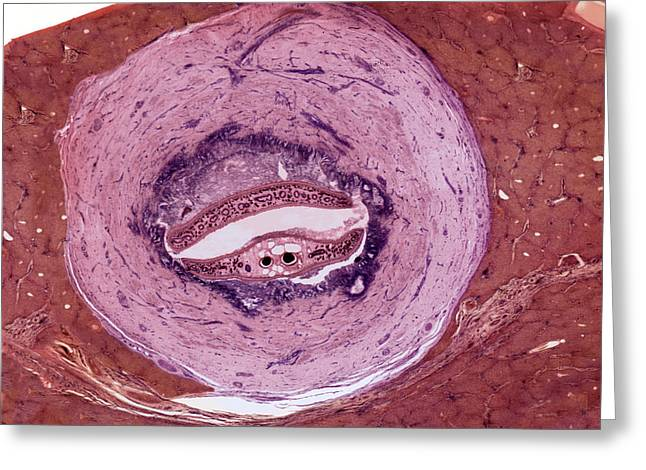 Liver Greeting Cards - Fluke In Sheeps Liver, Light Micrograph Greeting Card by Steve Gschmeissner