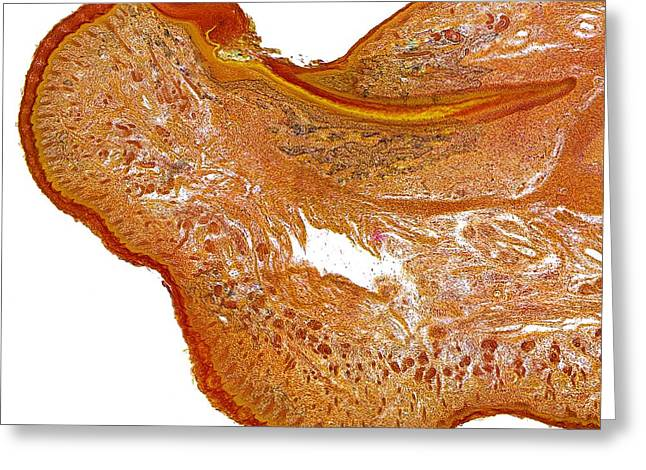 Foetal Finger Tissue, Light Micrograph Greeting Card by Dr Keith Wheeler