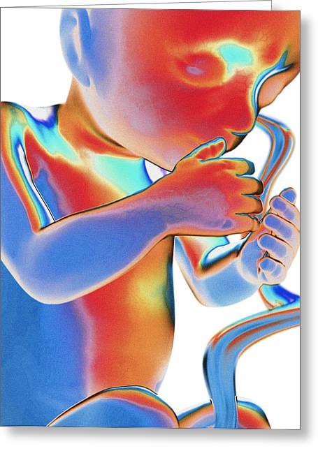 Thermograph Greeting Cards - Foetus, Computer Artwork Greeting Card by Roger Harris