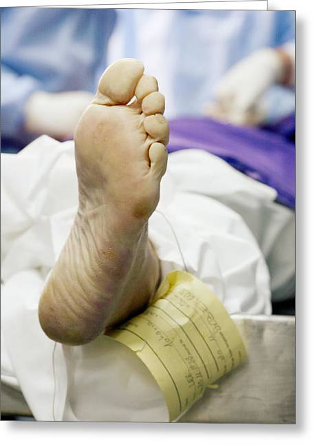 Forensic Pathology Greeting Cards - Foot Of A Corpse Greeting Card by Mauro Fermariello