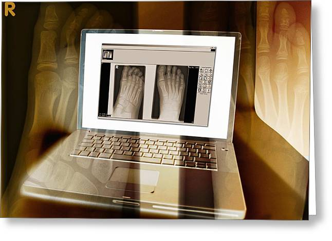 Medical X-ray Greeting Cards - Foot X-rays On A Laptop Computer, Artwork Greeting Card by Miriam Maslo