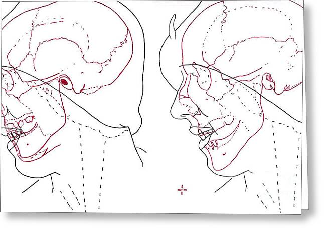 Strangling Greeting Cards - Forensic Evidence, Buck Ruxton Murder Greeting Card by Science Source