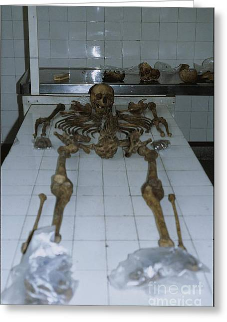 Anthropologists Greeting Cards - Forensic Evidence, Skeletal Greeting Card by Science Source
