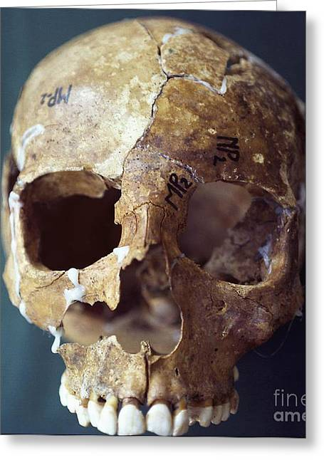 Missing Teeth Greeting Cards - Forensic Evidence, Skull Reconstruction Greeting Card by Science Source
