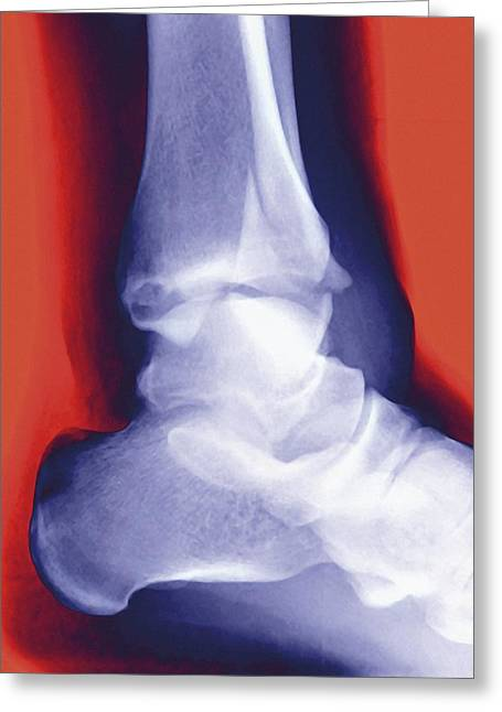 Osteology Greeting Cards - Fractured Ankle, X-ray Greeting Card by Miriam Maslo