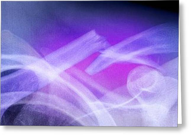 Coloured Greeting Cards - Fractured Collar Bone, X-ray Greeting Card by Du Cane Medical Imaging Ltd