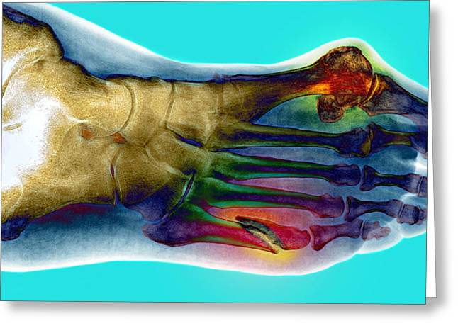 Human Foot Greeting Cards - Fractured Foot Greeting Card by Du Cane Medical Imaging Ltd