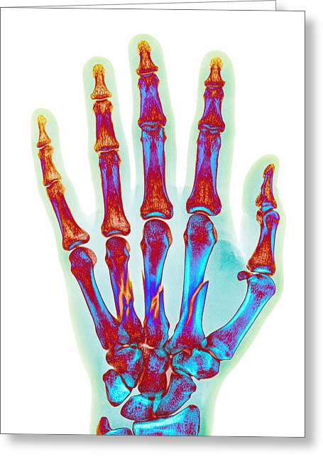 Fragmentation Greeting Cards - Fractured Palm Bones Of Hand, X-ray Greeting Card by