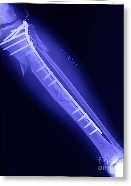 Prosthetic Greeting Cards - Fractured Tibia Greeting Card by Ted Kinsman
