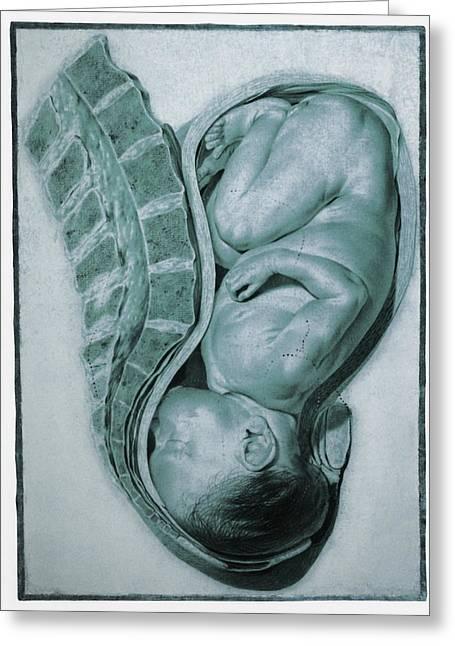 Full-term Foetus At 40 Weeks Greeting Card by Mehau Kulyk