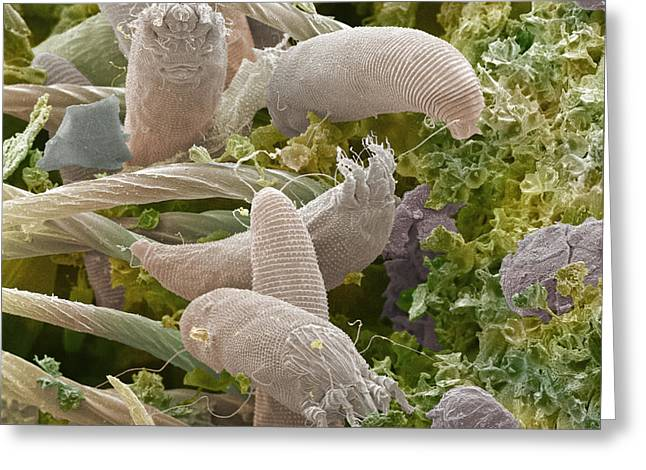 Scanning Electron Micrograph Greeting Cards - Gall Mites, Sem Greeting Card by Power And Syred